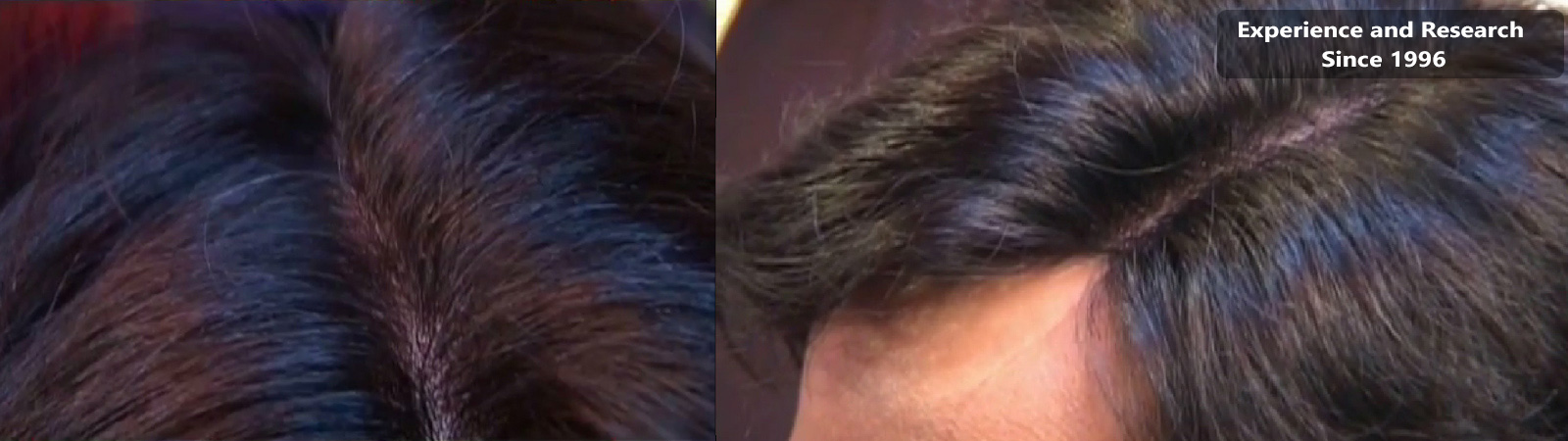 Hair Weaving Hair Baldness Treatment Hear Weaving Non Surgical